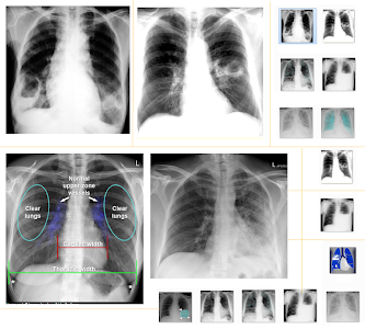Download Chest X-Ray And Pathology 2.0 APK