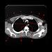 Download POCKET ATLAS CT THORAX 1.0 APK